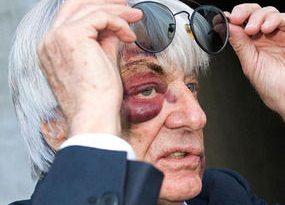 F1: Ecclestone exibe hematoma no olho após assalto